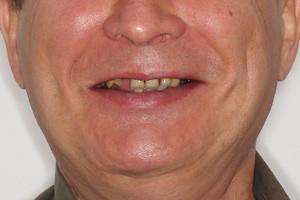 All-on-6 для верхней и нижней челюсти, фото до