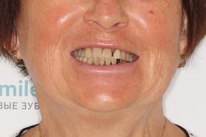 Восстановление зубов с опорой на новые и старые импланты, фото до