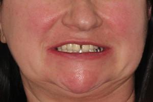 Все-на-6 с применением базальной и скуловой имплантации, фото до