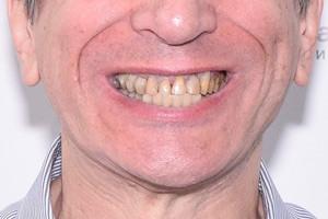 All-on-6 для обеих челюстей, плюс скуловые импланты для верхней челюсти, фото до