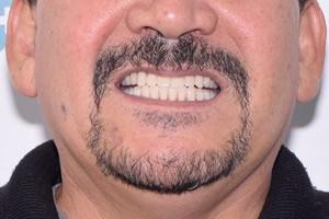 Скуловая имплантация для восстановления зубов. Протокол All-on-6, фото до