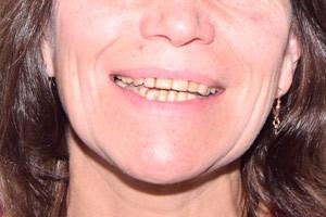 Восстановление обеих челюстей с применением скуловой имплантации, фото до
