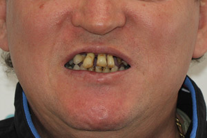 Все-на-6 для обеих челюстей, фото до
