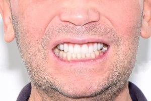Протезирование на шести имплантах для верхней челюсти с имплантами Zygoma, фото до
