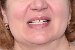 ProArch на 6ти имплантах Straumann для верхней и нижней челюсти, фото до