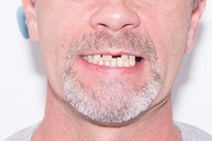 Имплантация по технологии ProArch для восстановления зубов, фото до