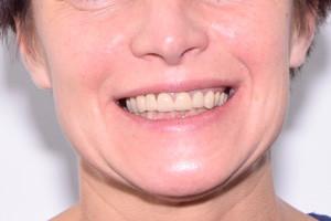 All-on-6 от Nobel для новой улыбки, фото до
