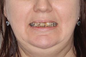 All-on-6 с двумя базальными имплантами на обе челюсти, фото до