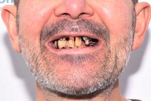 All-on-6 на смену разрушенным зубам, фото до