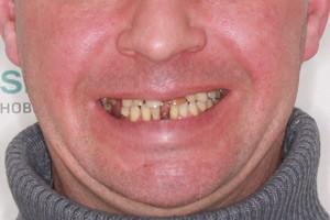 Все-на-6 с базальными имплантами на обе челюсти, фото до