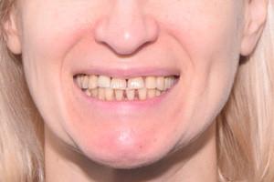 Все-на-6 на замену проблемным зубам и пародонтиту, фото до