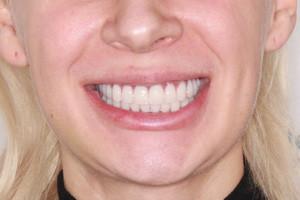 All-on-4 + два базальных импланта = Новая улыбка, фото до