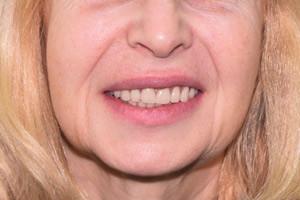 Все-на-6 для восстановления верхней и нижней челюстей, фото до