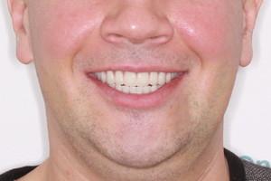 Все-на-6 с отсроченной нагрузкой на обе челюсти, фото до