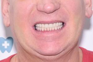 Комплексное восстановление зубов верхней и нижней челюсти, фото до