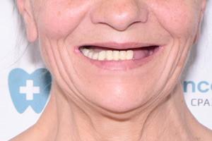 All-on-6 для нижней челюсти и съемный протез для верхней, фото до