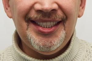 Восстановление нижней челюсти по протоколу All-on-6, фото до