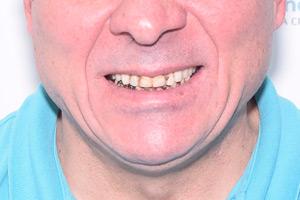 All-on-6 на обе челюсти за 1 день, фото до