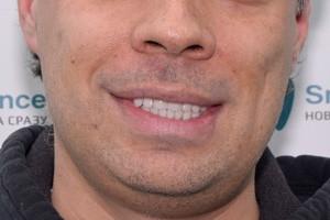 All-on-6 с постоянным протезом на обе челюсти, фото до