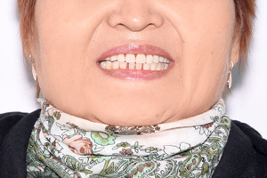 Восстановление верхней челюсти на шести имплантах, фото до
