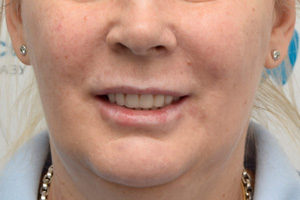Восстановление зубов по протоколу All-on-6 за 1 день, фото до