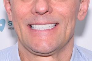 Все-на-6 на обе челюсти, фото до