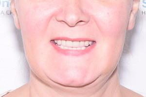 All-on-6 на имплантах Straumann для обеих челюстей, фото до