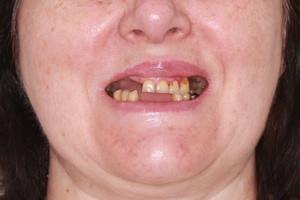 All-on-4 от Nobel обе челюсти, фото до