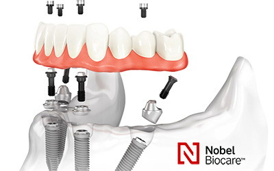 All-on-4 Nobel Biocare - Зубы за 1 день.