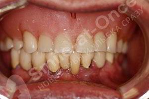 Комплексная имплантация SMILE-AT-ONCE и All-ON-6