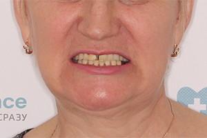 Восстановление разрушенных зубов обеих челюстей