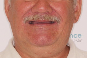 Восстановление зубов после зубных коронок