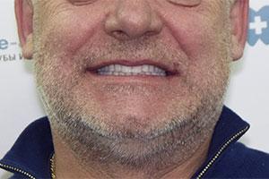 Восстановление зубов имплантатами фото до