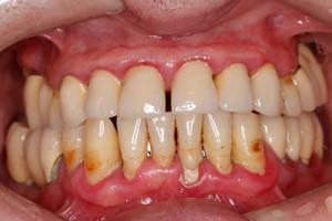 Протезирование All-on-4 верхней и нижней челюсти