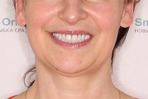 Комплексная базальная имплантация зубов