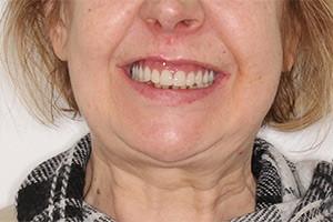Имплантация зубов верхней челюсти фото до