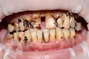 Проведение базальной имплантации 2 челюстей