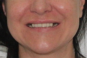 Верхняя челюсть - базальная имплантация