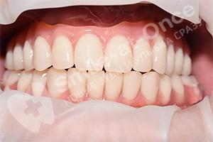 Восстановление зубов на двух челюстях за 3 дня