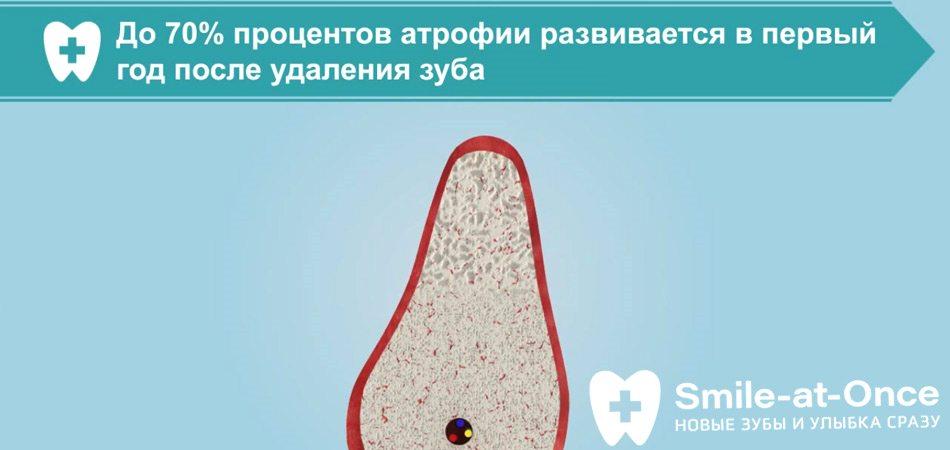 Видео об атрофии костной ткани после удаления зубов