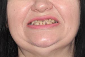 All-on-4 на замену разрушенных зубов, фото до