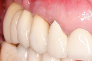 Восстановление жевательных зубов имплантами, фото до