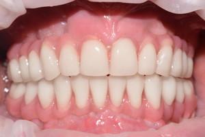 Восстановление разрушенных и отсутствующих зубов - протезирование All-on-4