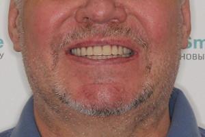 Пациент из Мурманска после комплексной имплантации зубов, фото до