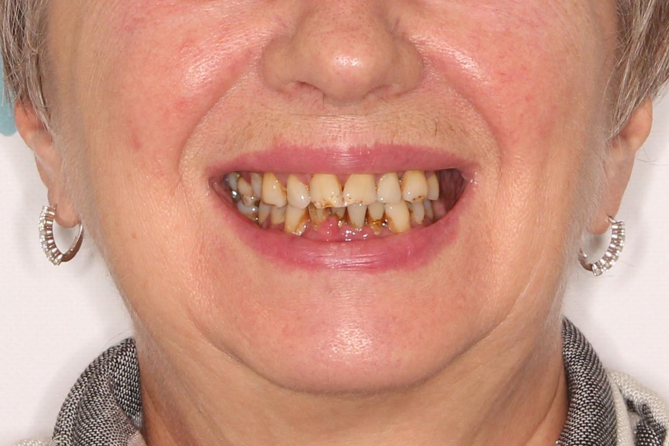 Новые зубы за 3 дня. Basal Complex на обе челюсти