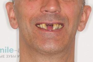 Базальная имплантация для пациента из Эстонии, фото до