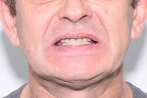 Базальная имплантация для пациента из Ставропольского края, фото до