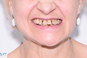 Новые зубки после Basal Complex, фото до