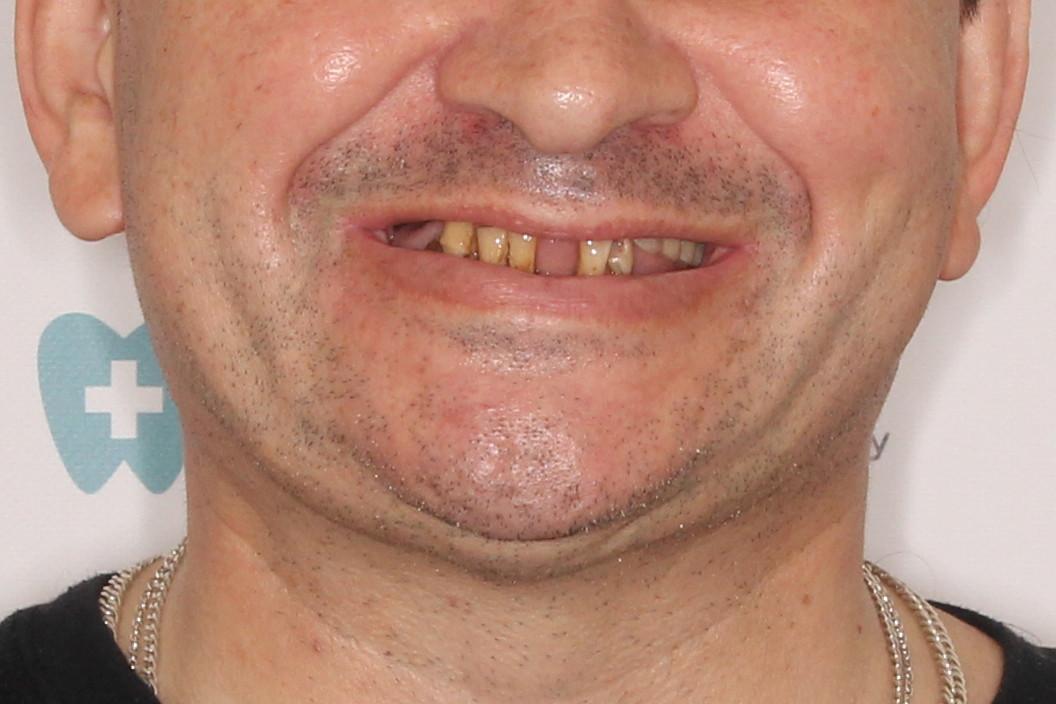 Basal Complex на обе челюсти и керамокомпозитные протезы через год, фото до