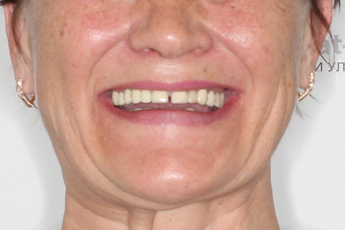 Basal Complex на обе челюсти с керамокомпозитными протезами через 2 года